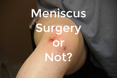 Meniscus-Surgery-or-Not